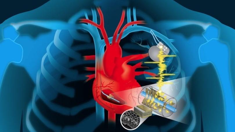 dartmouthengineerscardiacenergydevice